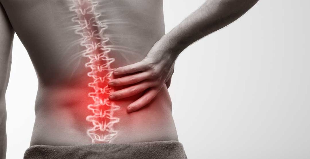 Radiofrequency Ablation for Facet Joint Pain